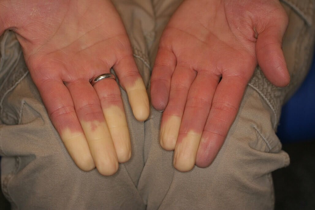 sindrome di raynaud