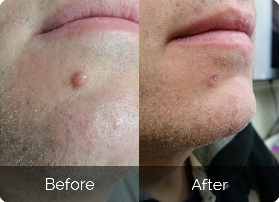 skin cell pro